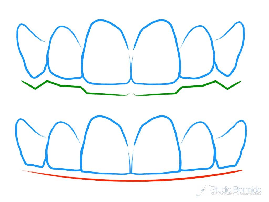 Bruxismo e forma dei denti