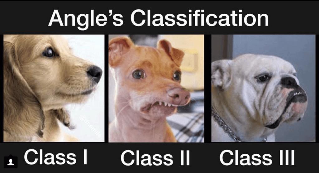 Classificazione delle occlusioni