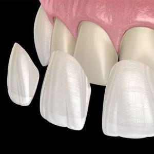 odontoiatria estetica