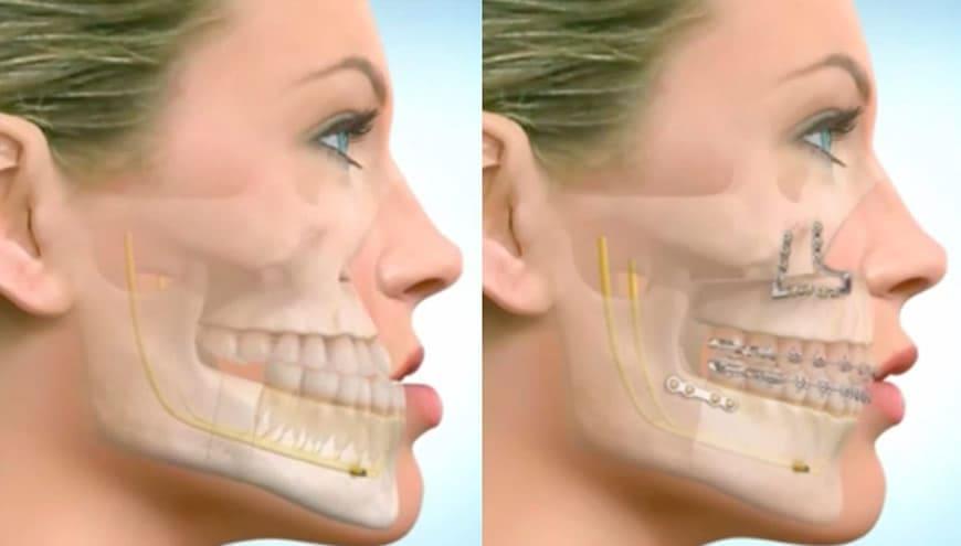 Chirurgia maxillo facciale cura