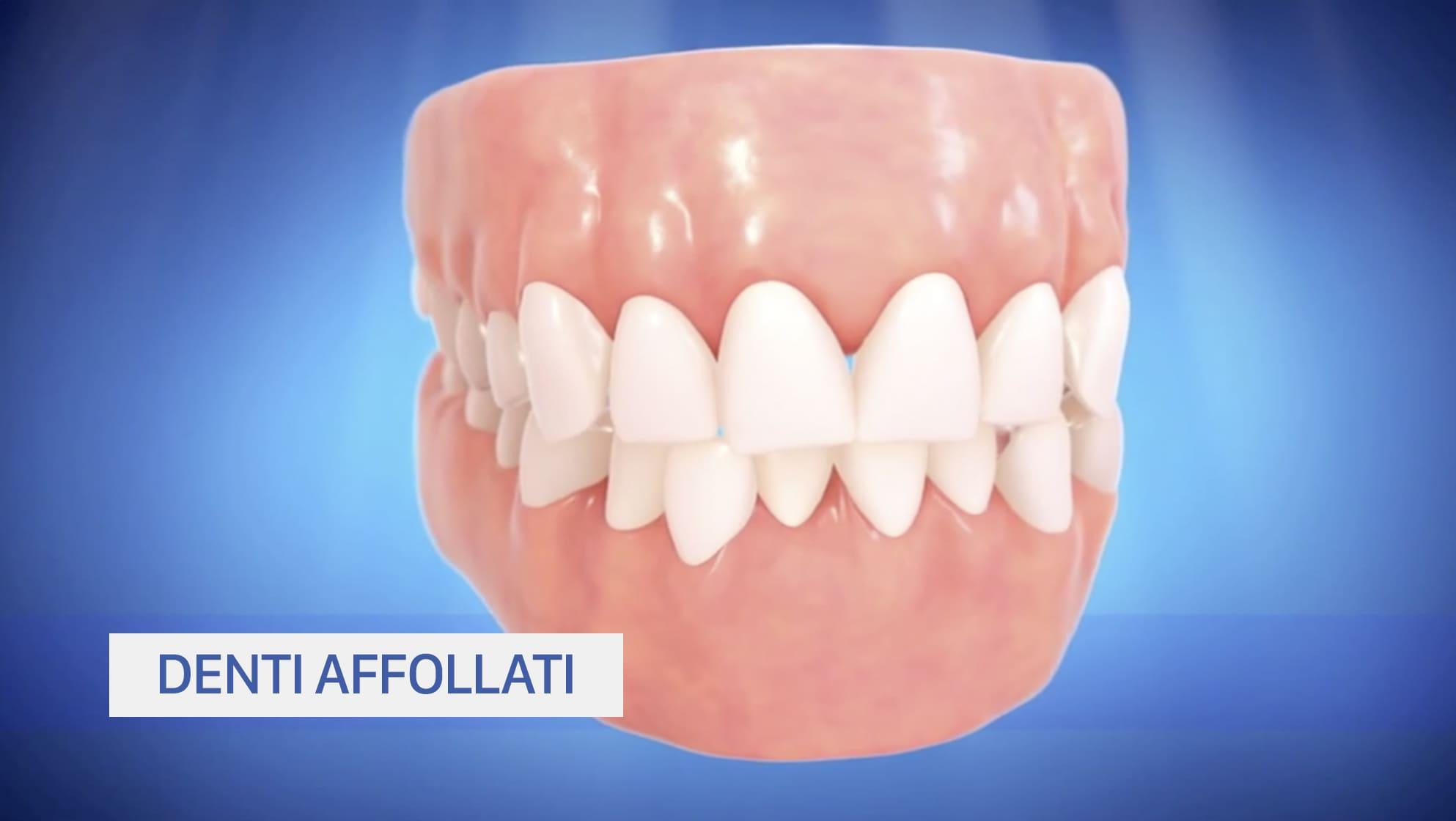 Denti affollati