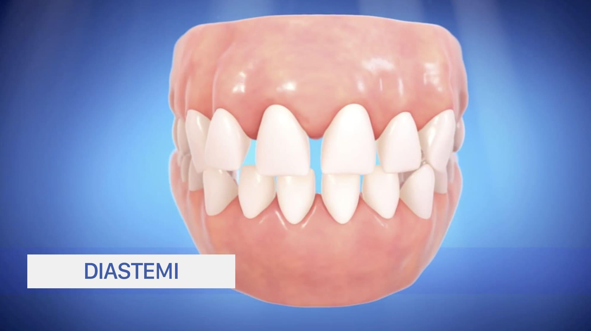 Diastemi, spazi tra i denti