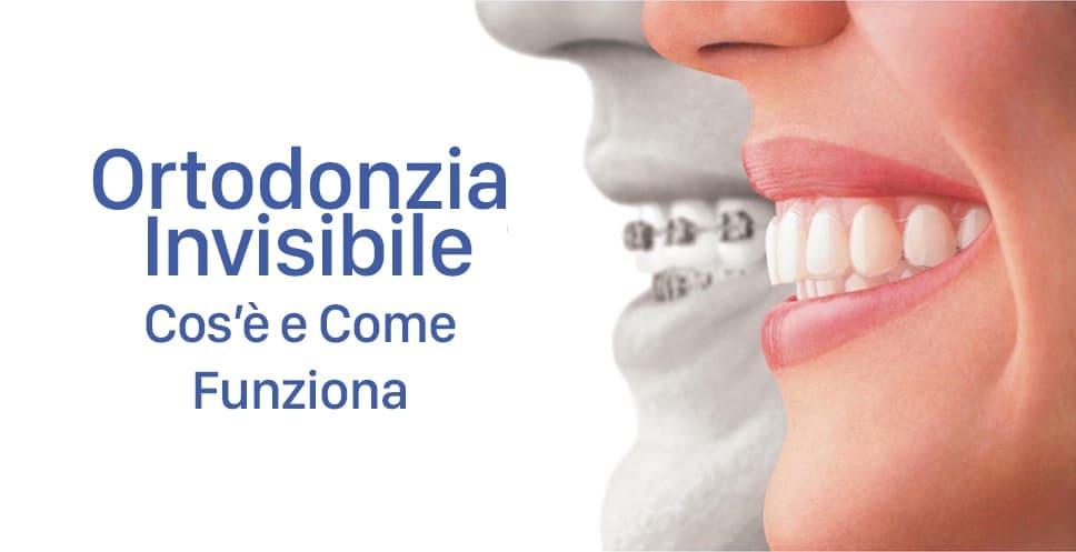 Ortodonzia Invisibile cos'è