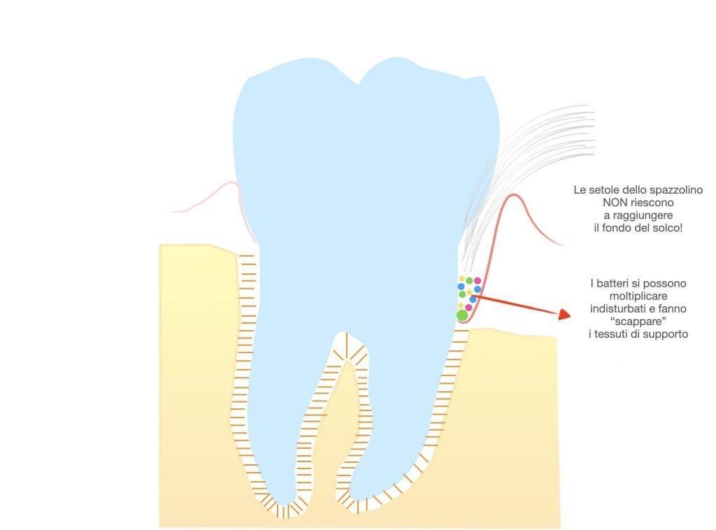 Parodontite stadio avanzato