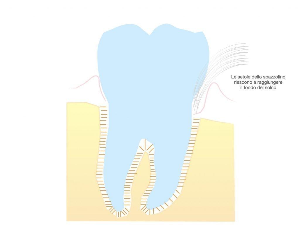 parodontite stadio di analisi iniziale