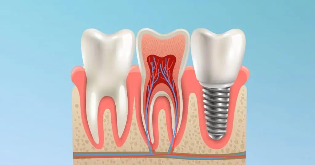 Impianti dentali: le cose da sapere