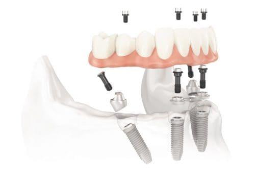 Impianti dentali All on Four