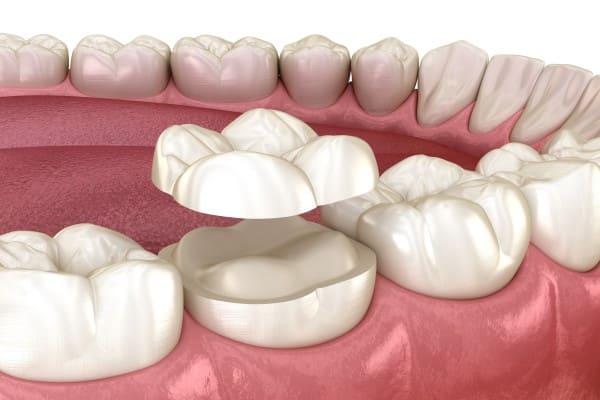 Intarsio dentale