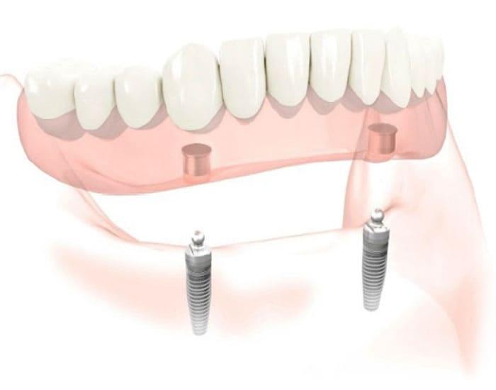 Protesi dentarie con clips