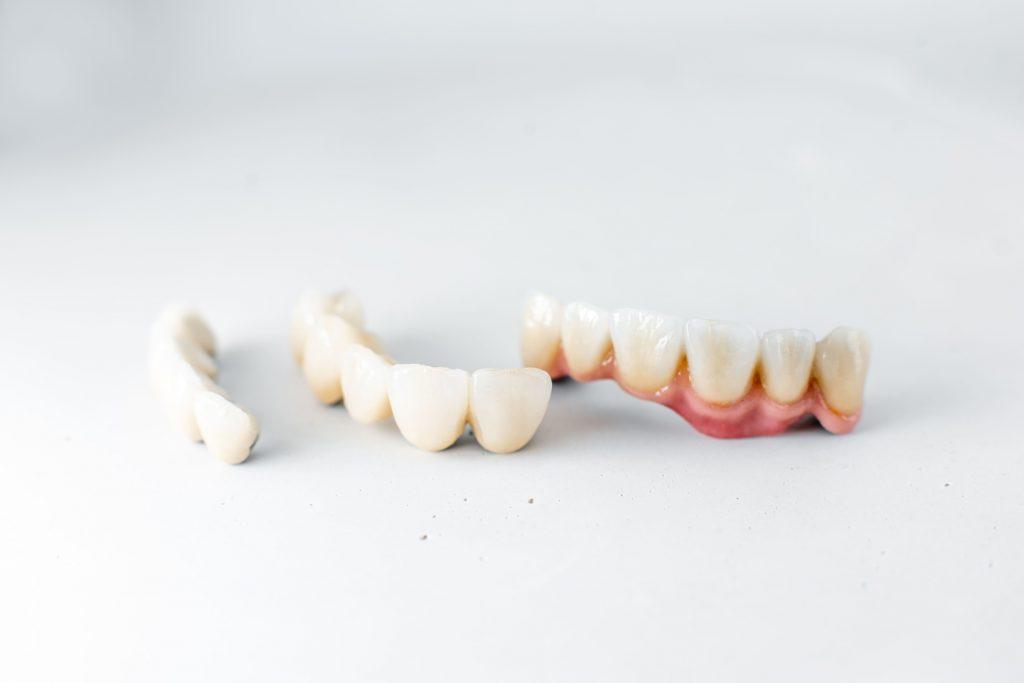 Protesi dentarie: fisse e mobili