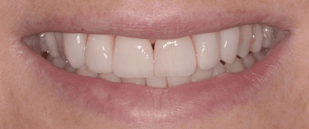 Erosione dentale: curarla con la 3 Step Technique